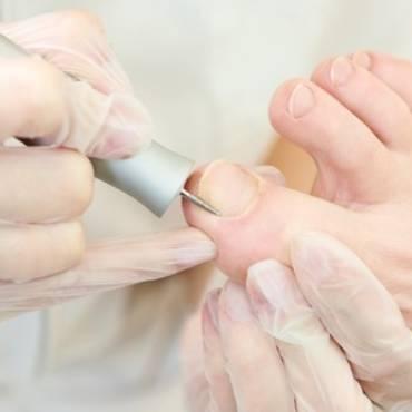 Wzrastające paznokcie
